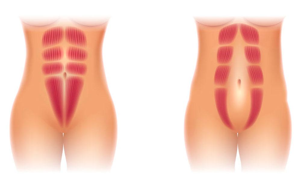 En behandling på Delte mavemuskler